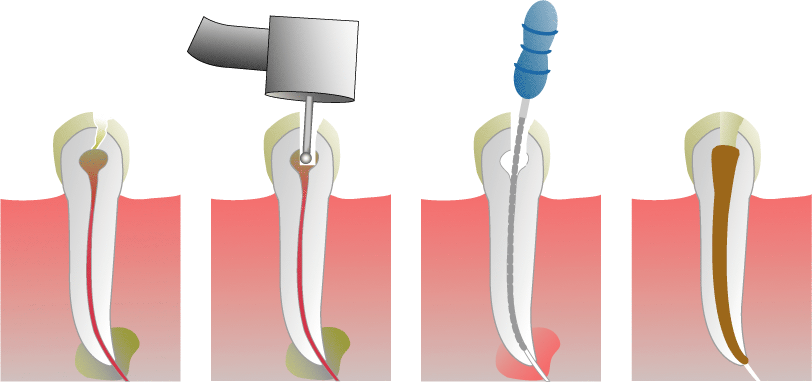 root_canal_illustration-wiki